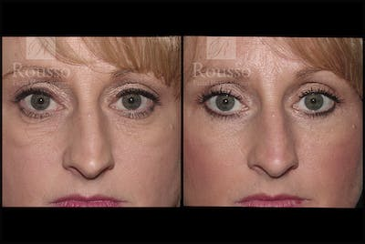 Blepharoplasty Gallery - Patient 3262170 - Image 1