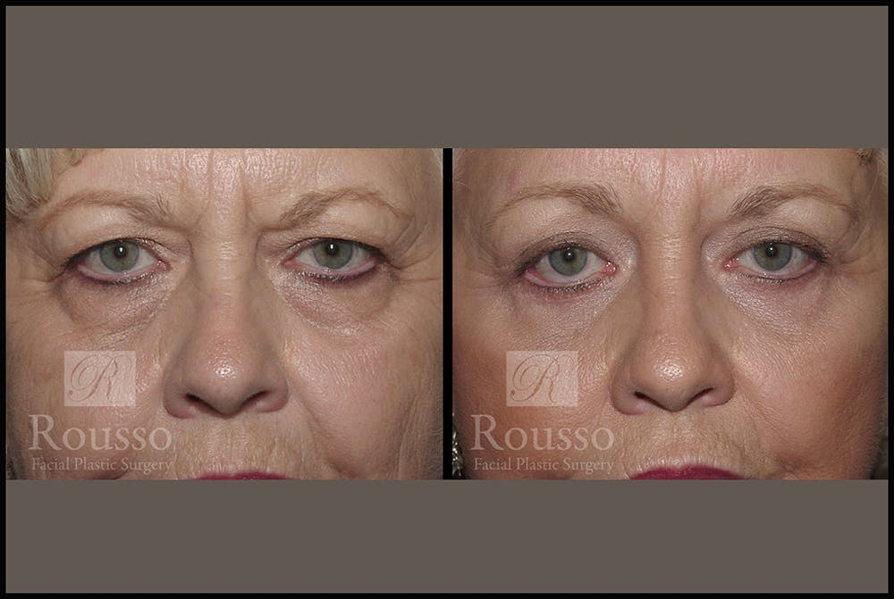 Blepharoplasty Gallery - Patient 3262200 - Image 1