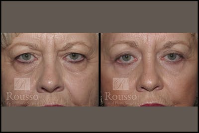 Blepharoplasty Gallery - Patient 3262200 - Image 1