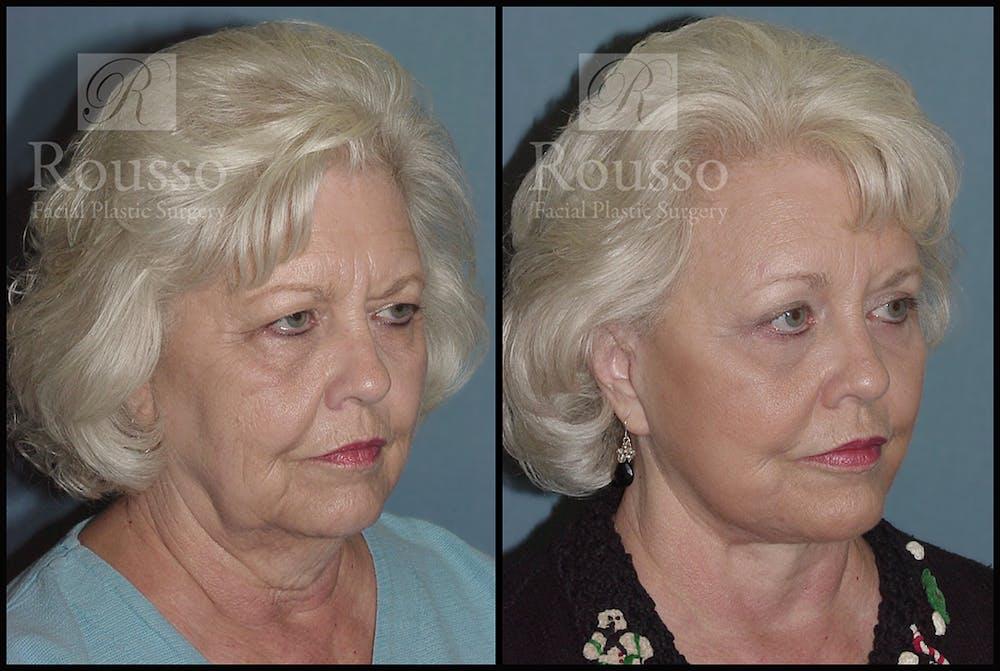 Blepharoplasty Gallery - Patient 3262200 - Image 2