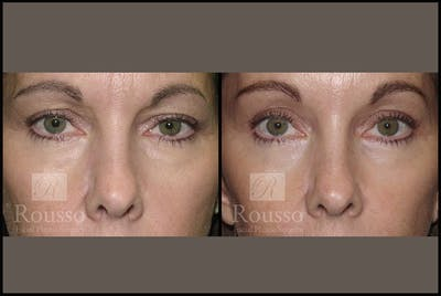 Blepharoplasty Gallery - Patient 3262269 - Image 1