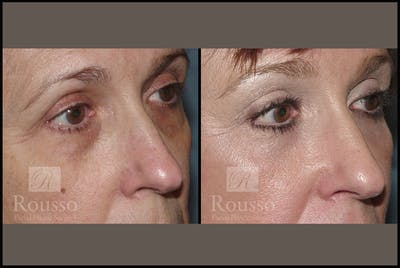 Blepharoplasty Gallery - Patient 3262270 - Image 1