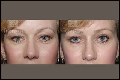 Blepharoplasty Gallery - Patient 3262271 - Image 1