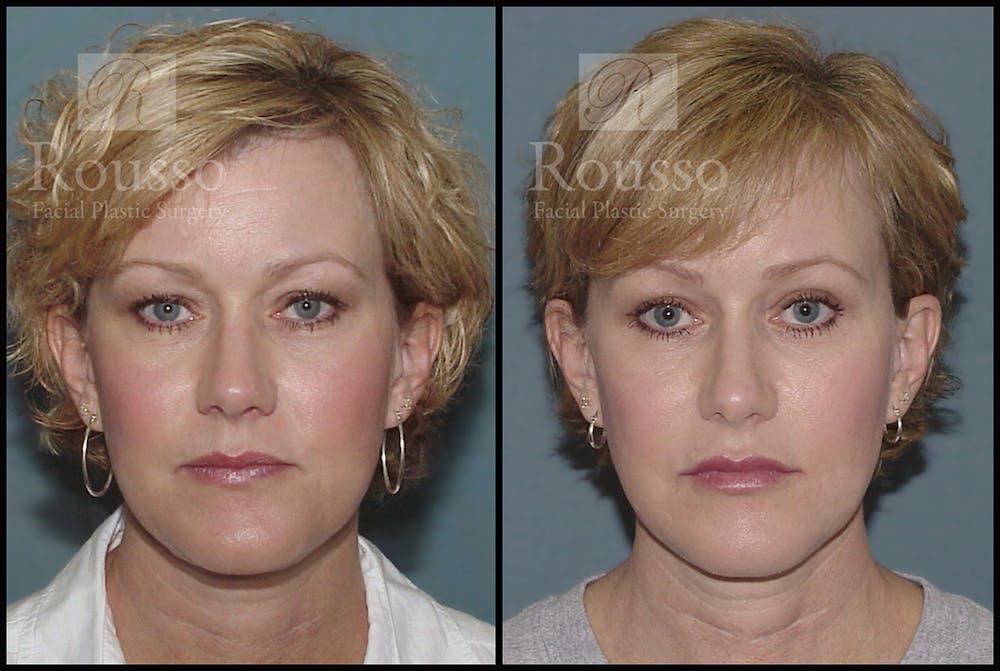 Blepharoplasty Gallery - Patient 3262271 - Image 2