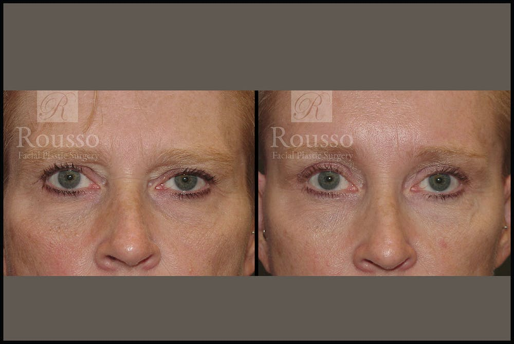 Blepharoplasty Gallery - Patient 3374125 - Image 1