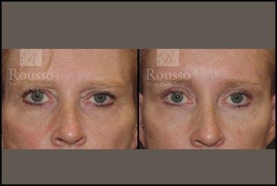 Blepharoplasty Gallery - Patient 3374125 - Image 1