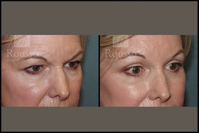 Blepharoplasty Gallery - Patient 3374125 - Image 2
