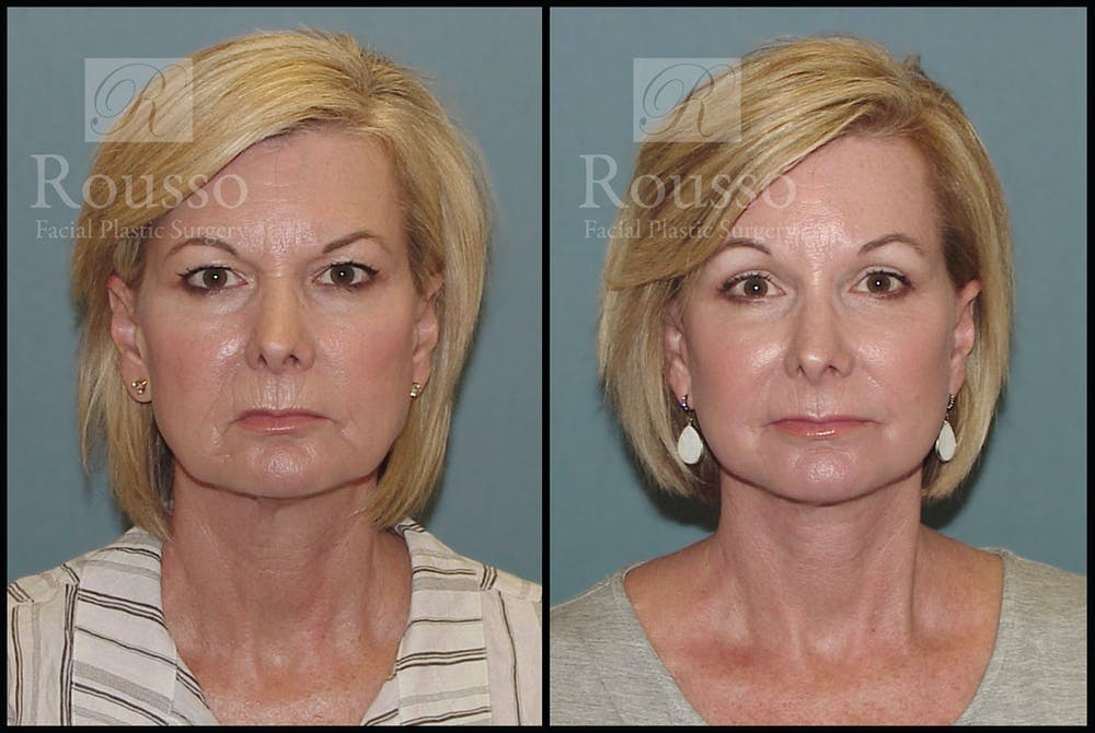 Facelift Gallery - Patient 3374262 - Image 3
