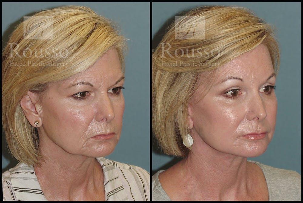 Facelift Gallery - Patient 3374262 - Image 2