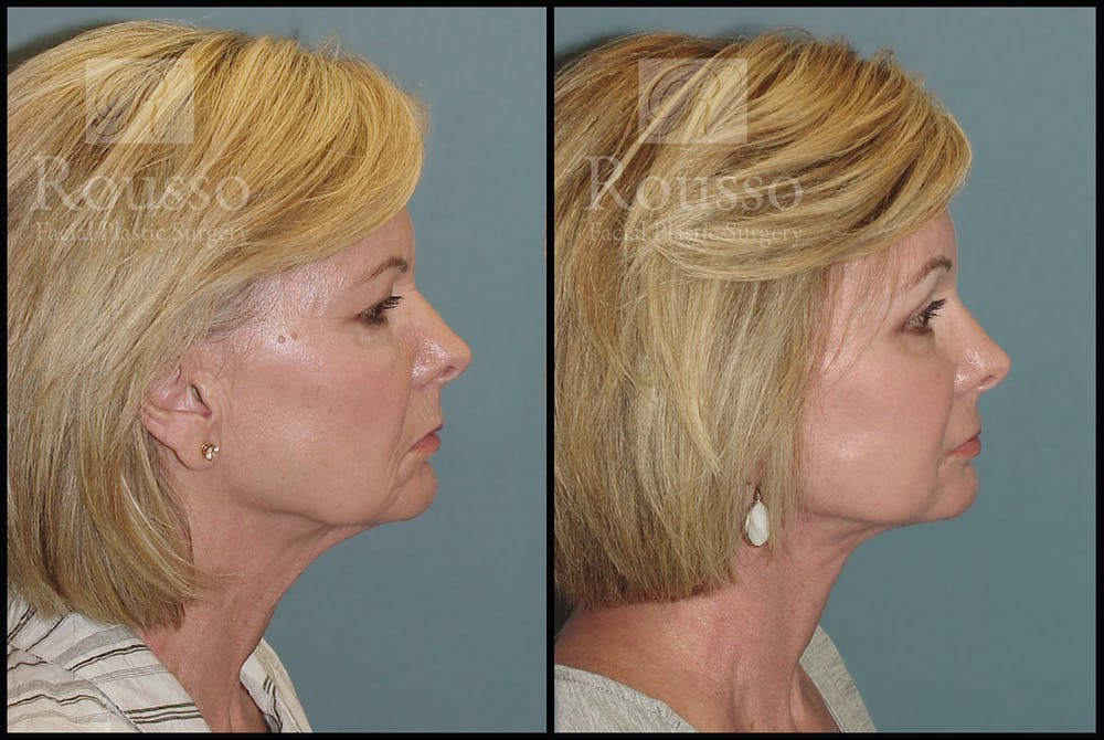 Facelift Gallery - Patient 3374262 - Image 1