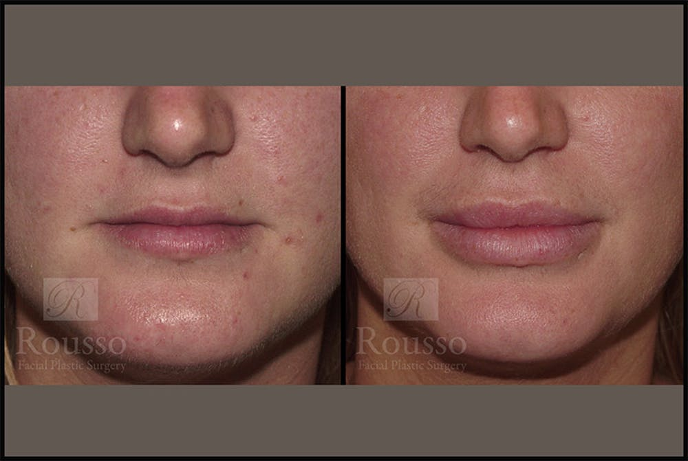 Fillers Gallery - Patient 4412631 - Image 1