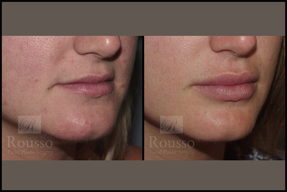 Fillers Gallery - Patient 4412631 - Image 2