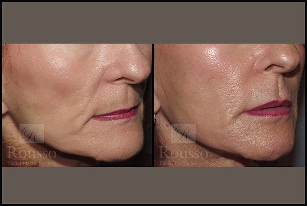 Fillers Gallery - Patient 4412632 - Image 1