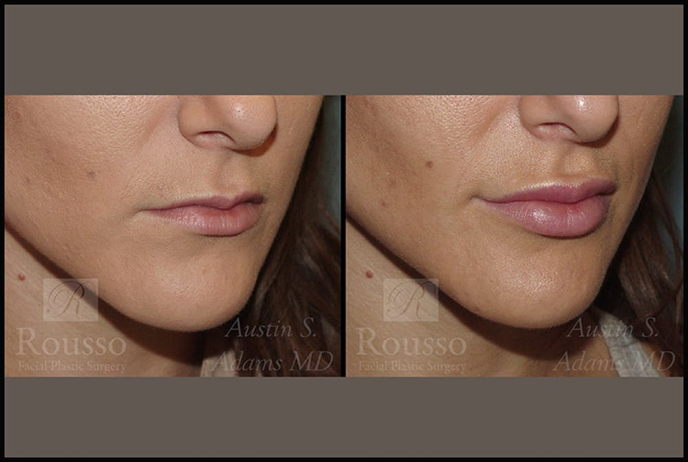 Fillers Gallery - Patient 4412633 - Image 2