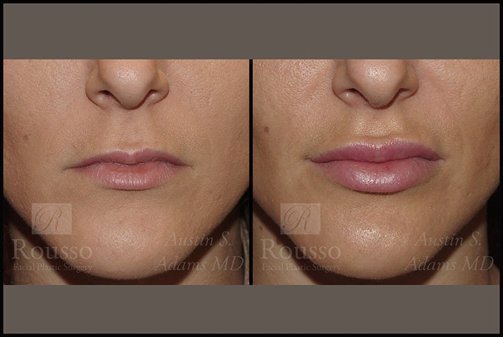 Fillers Gallery - Patient 4412633 - Image 1