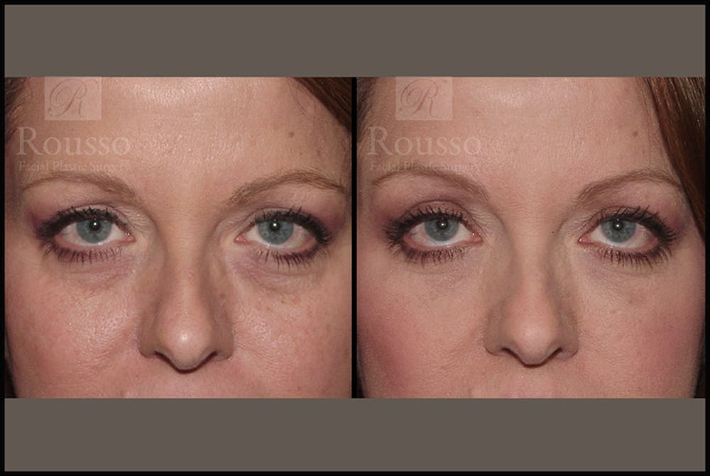 Fillers Gallery - Patient 4412634 - Image 1