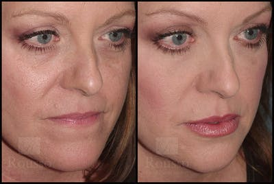 Fillers Gallery - Patient 4412634 - Image 2