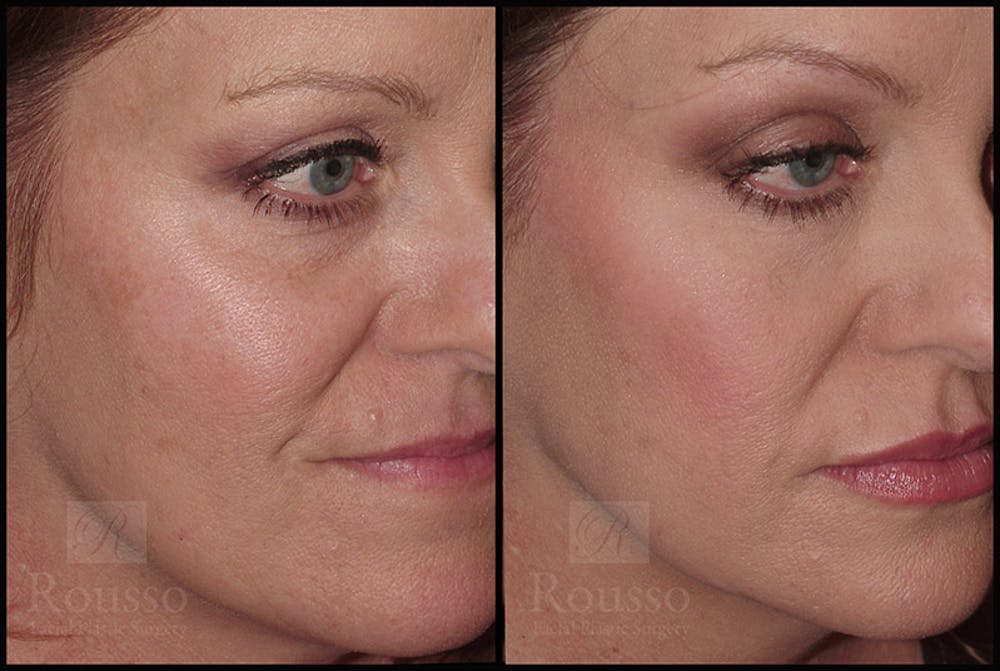 Fillers Gallery - Patient 4412634 - Image 3