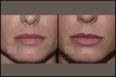 Fillers Gallery - Patient 4412635 - Image 1