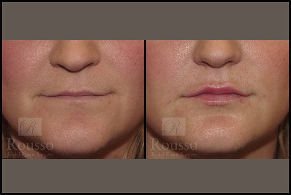Fillers Gallery - Patient 4412637 - Image 1