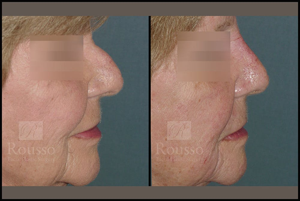 Fillers Gallery - Patient 4412638 - Image 1