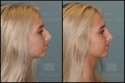 Fillers Gallery - Patient 4412639 - Image 1