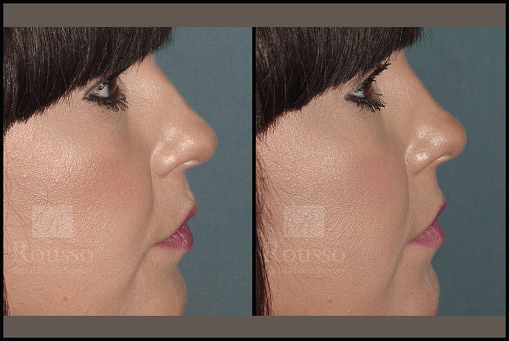 Fillers Gallery - Patient 4412640 - Image 1