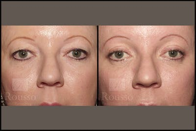 Blepharoplasty Gallery - Patient 4488733 - Image 1