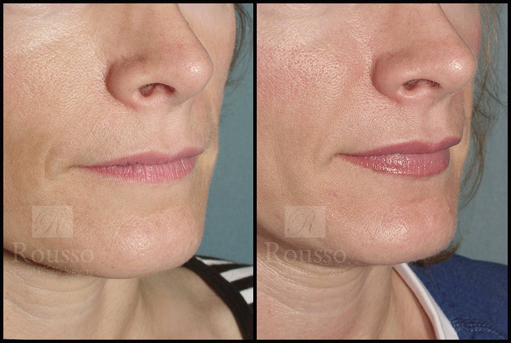 Fillers Gallery - Patient 4488745 - Image 1