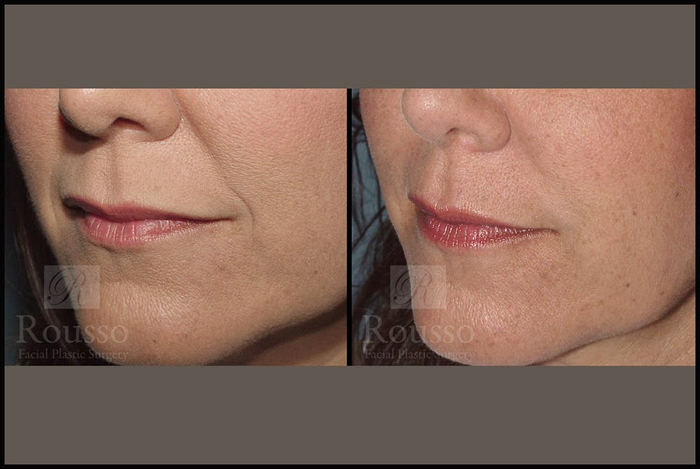 Fillers Gallery - Patient 4488746 - Image 1