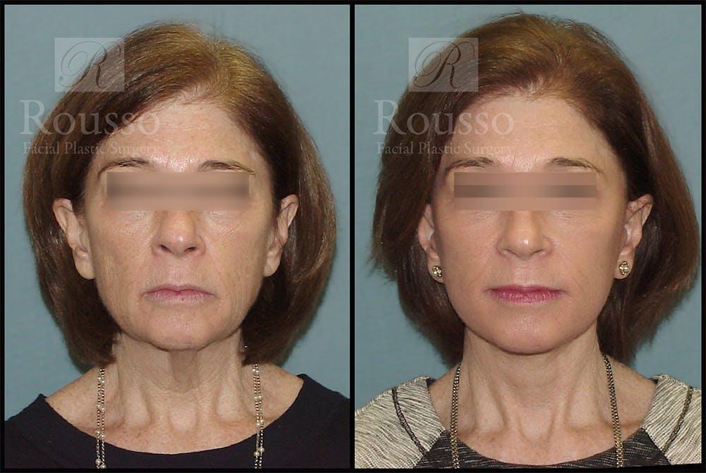 Facelift Gallery - Patient 4528692 - Image 3