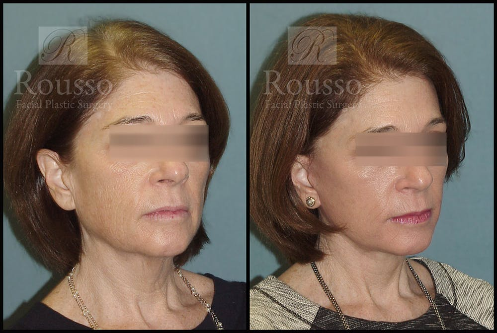 Facelift Gallery - Patient 4528692 - Image 2