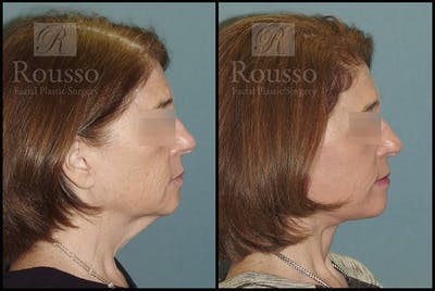 Facelift Gallery - Patient 4528692 - Image 1