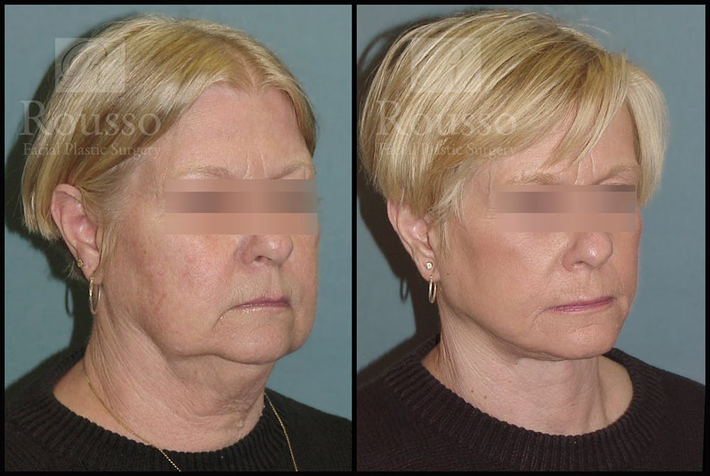 Facelift Gallery - Patient 2236589 - Image 2