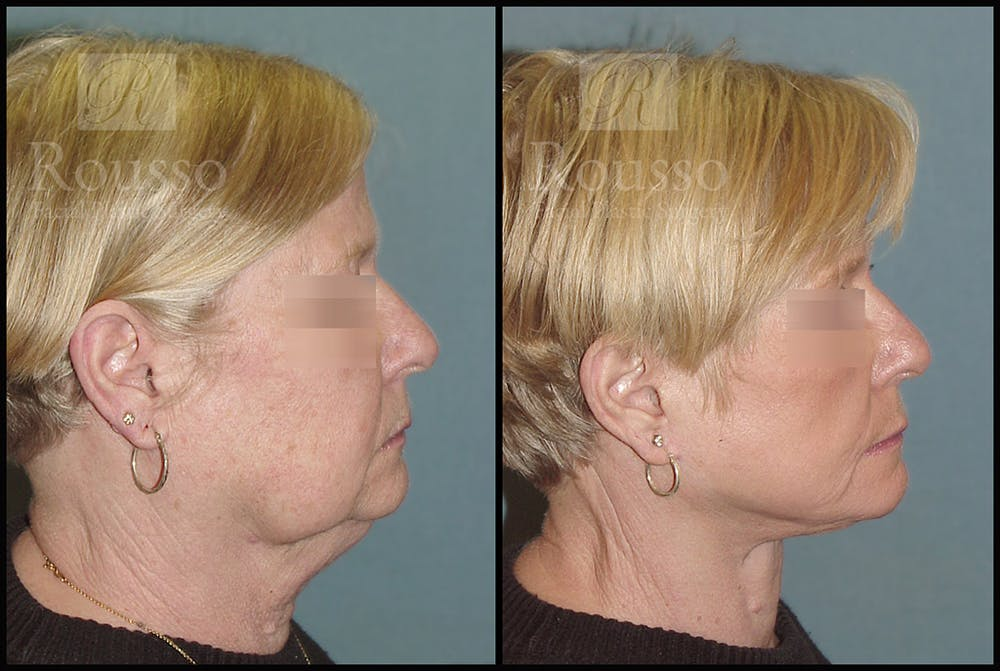 Facelift Gallery - Patient 2236589 - Image 1