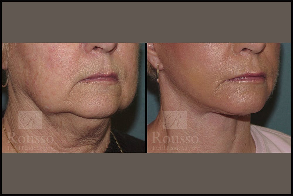 Facelift Gallery - Patient 2236589 - Image 3