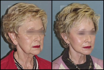 Facelift Gallery - Patient 2237247 - Image 2