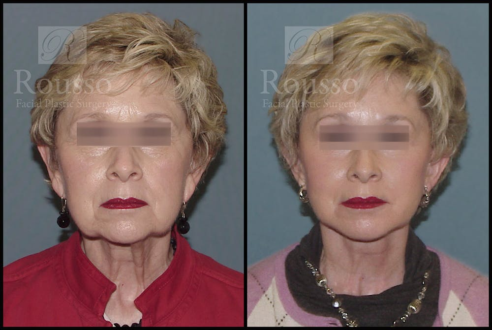 Facelift Gallery - Patient 2237247 - Image 3