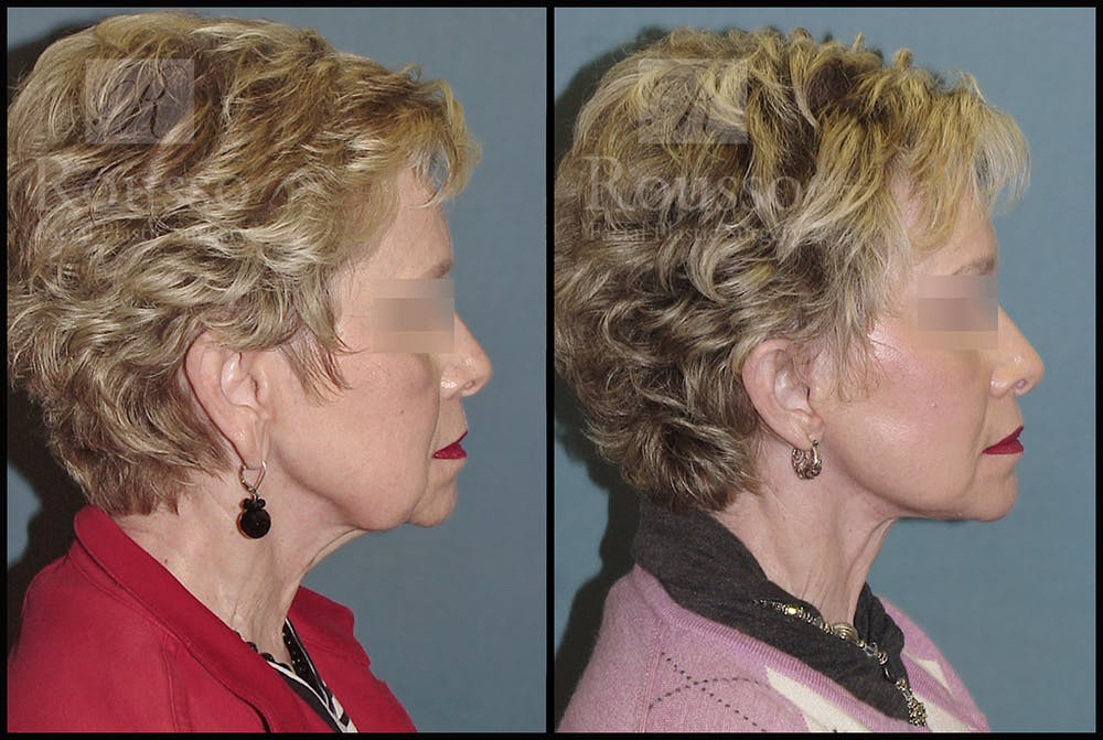 Facelift Gallery - Patient 2237247 - Image 1