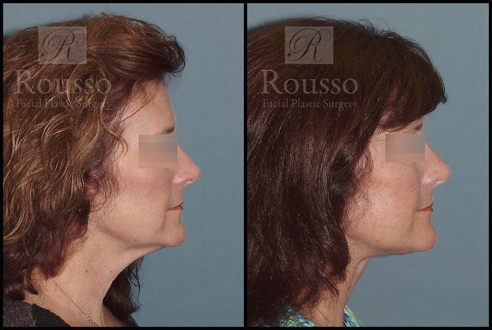 Facelift Gallery - Patient 2279561 - Image 1