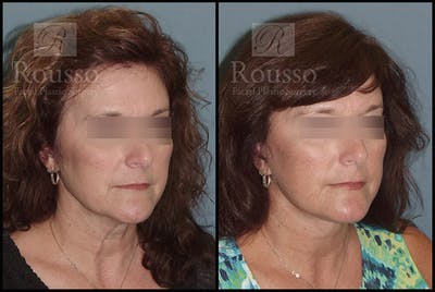 Facelift Gallery - Patient 2279561 - Image 2