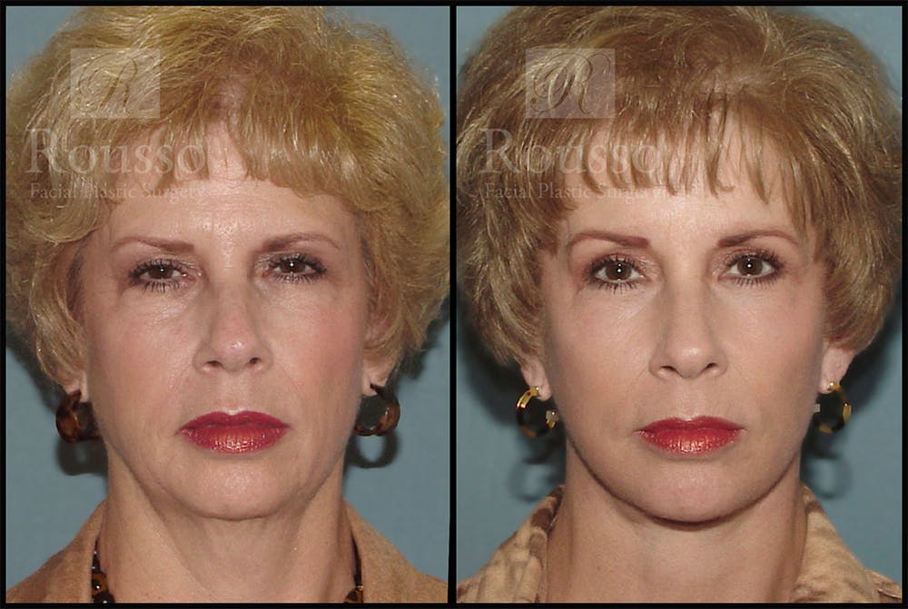 Facelift Gallery - Patient 4528794 - Image 3