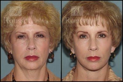 Facelift Gallery - Patient 4528794 - Image 1