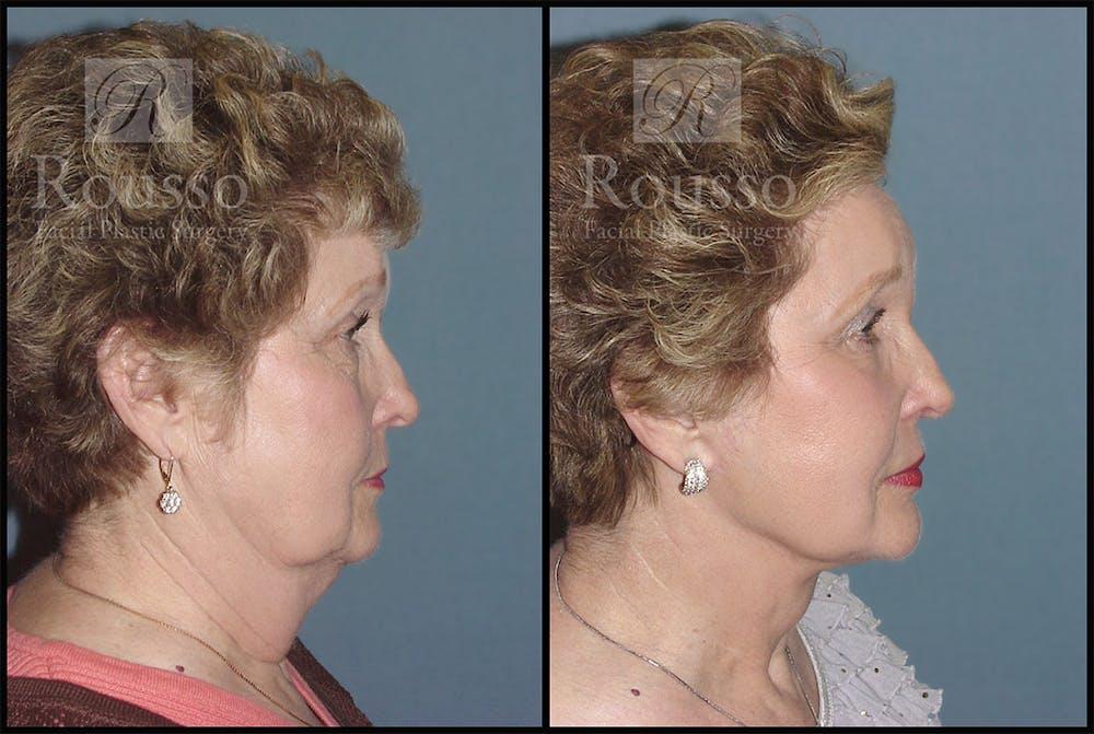Facelift Gallery - Patient 4528795 - Image 1