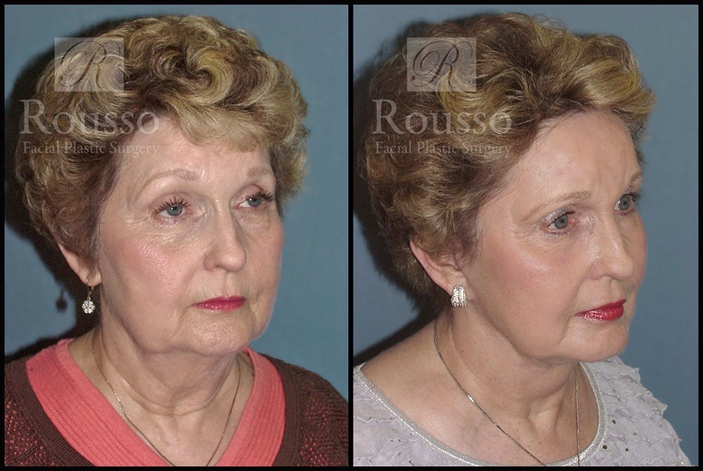 Facelift Gallery - Patient 4528795 - Image 2