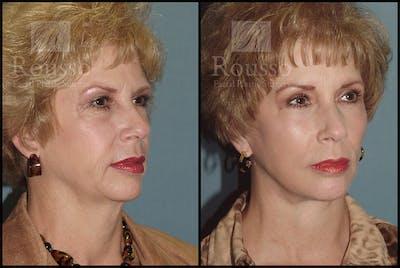 Facelift Gallery - Patient 4528794 - Image 2