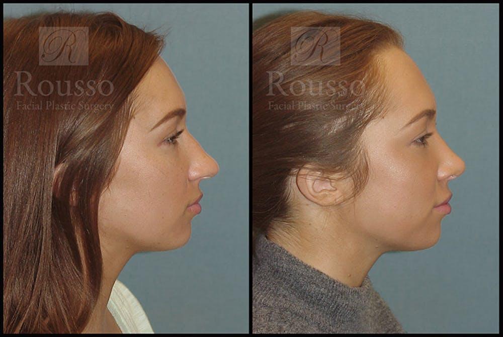 Rhinoplasty Gallery - Patient 4702352 - Image 3