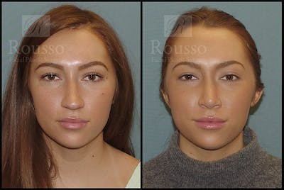 Rhinoplasty Gallery - Patient 4702352 - Image 1