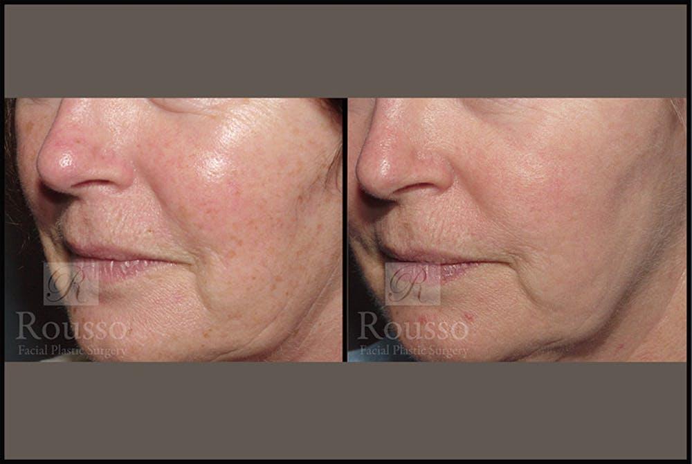 Plasma Skin Resurfacing Gallery - Patient 4727309 - Image 3