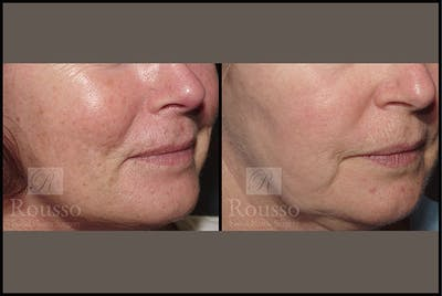 Plasma Skin Resurfacing Gallery - Patient 4727309 - Image 4